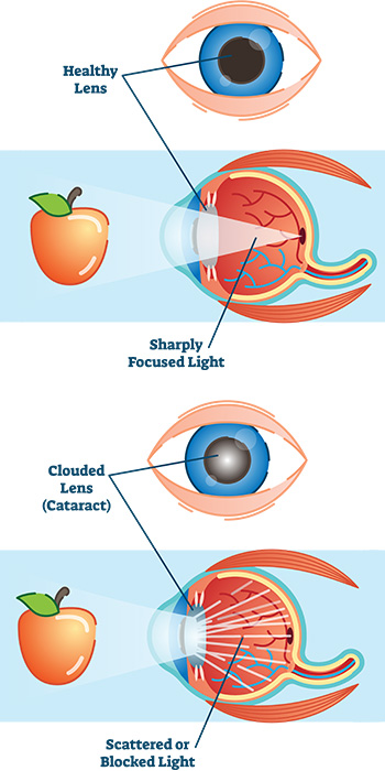 Cataracts - First Eye Care Irving