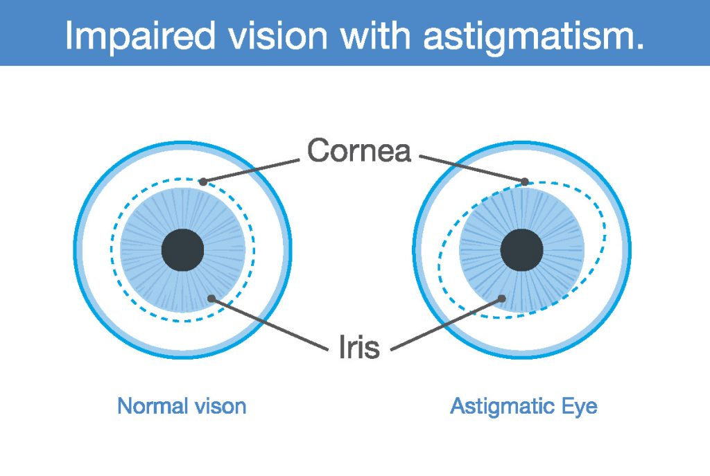 Impaired Vision with astigmatism
