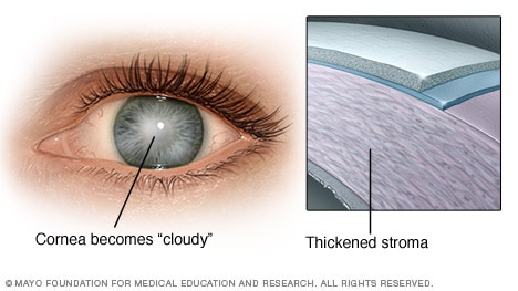 Corneal Endothelial Dystrophy
