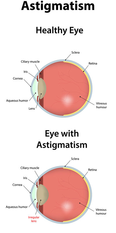 Astigmastim